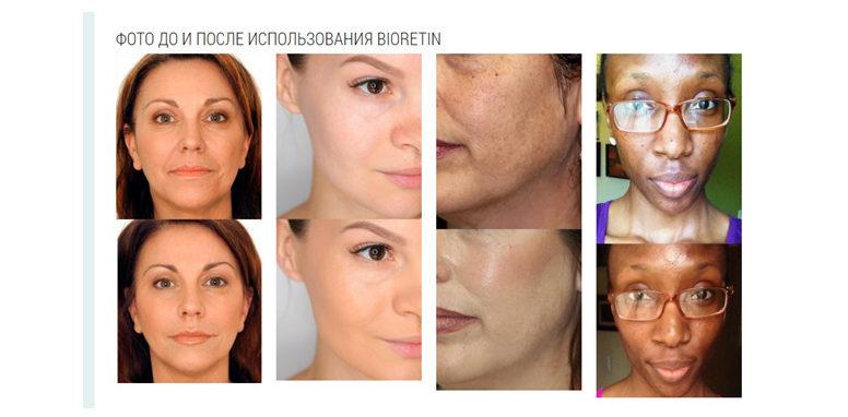 До и после применения Биоретина